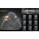 Sante DICOM Viewer for Netbooks